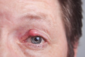 Bakterien sind die Hauptursache für die Entstehung eines Gerstenkorns am Auge.