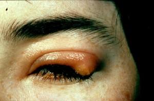 Das betroffene Auge zeigt Symptome wie Rötungen und eine starke Schwellung.