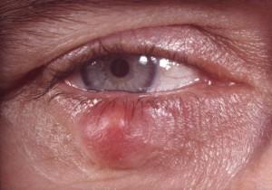 Betroffener mit einem Hagelkorn